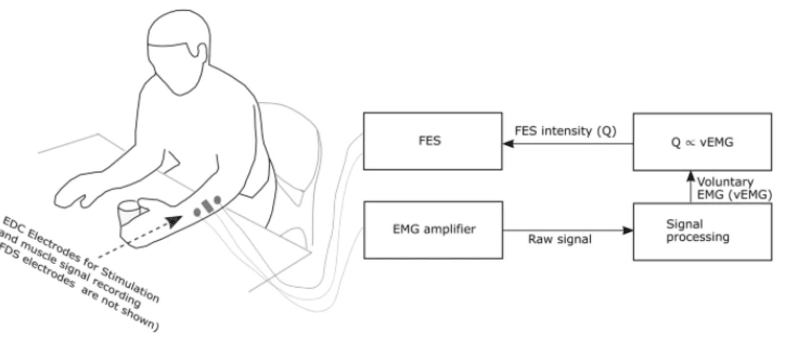 Active Functional Electrical Stimulation (Active FES) system developed with support from SMSR